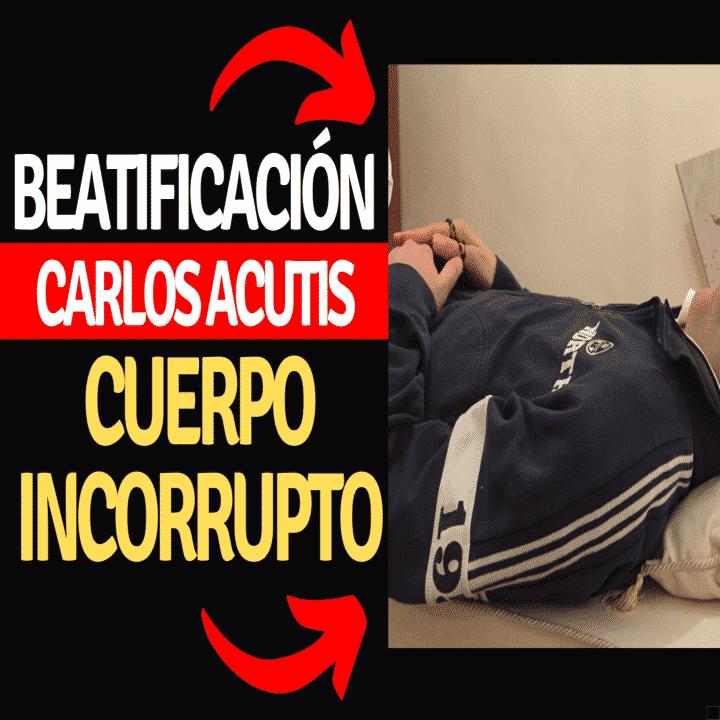 Así está el cuerpo de Carlo Acutis incorrupto